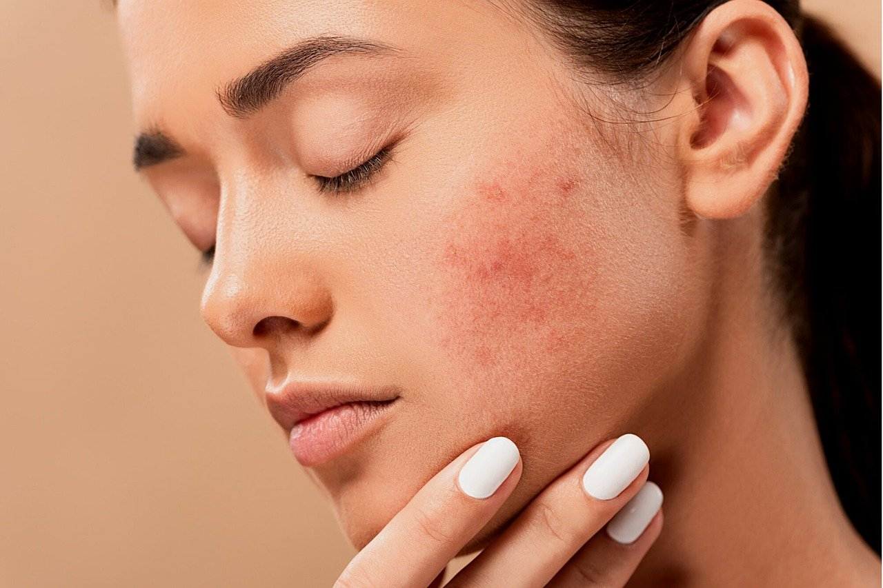 What Can I Do to Treat My Acne