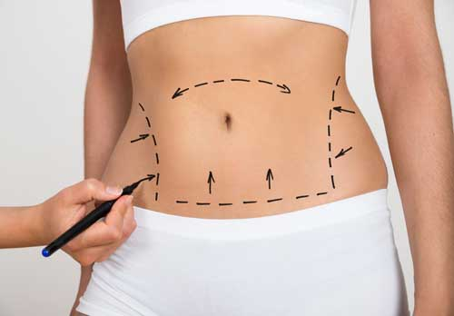 Tummy Tuck and Liposuction