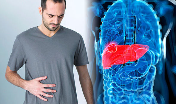 What Causes Liver Cancer? Know its Signs And Treatment